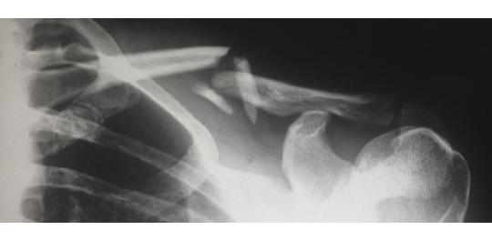 Broken bone on x-ray.